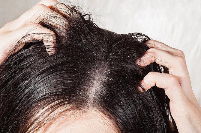 Уход за волосами при перхоти